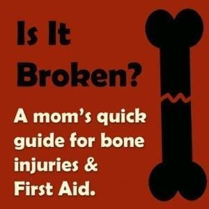 Broken bones   x-ray   healing   legs   arms   how to tell