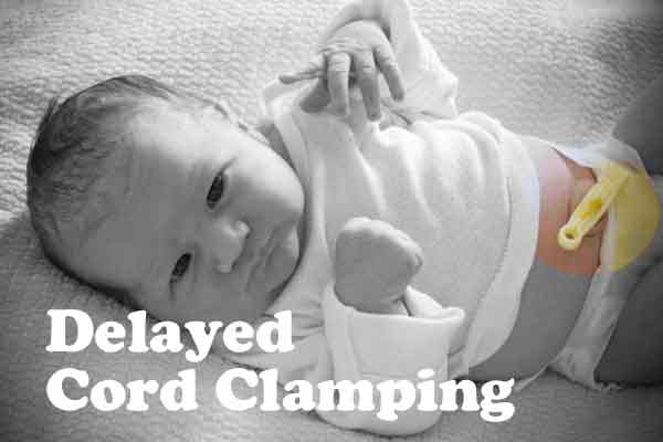 Delayed cord clamping answers / benefits of / risks / iron deficiency / health / newborn /c-section