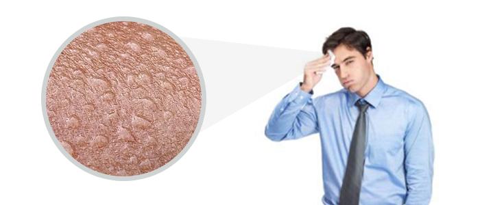Cierpisz na nadpotliwość? Zwalcz ją Botoxem