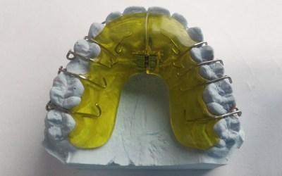 Poprawa wyglądu uśmiechu – stomatologia
