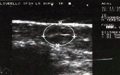 Fig. 2 Dopo riflessoterapia (dopo soli 14 minuti) lo stesso PD è ridotto a mm 15x13 (dimezzato)