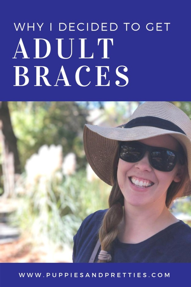 Why I decided to get adult braces | Braces are not just for teens anymore! Read why I decided to get ceramic adult braces | Puppies & Pretties