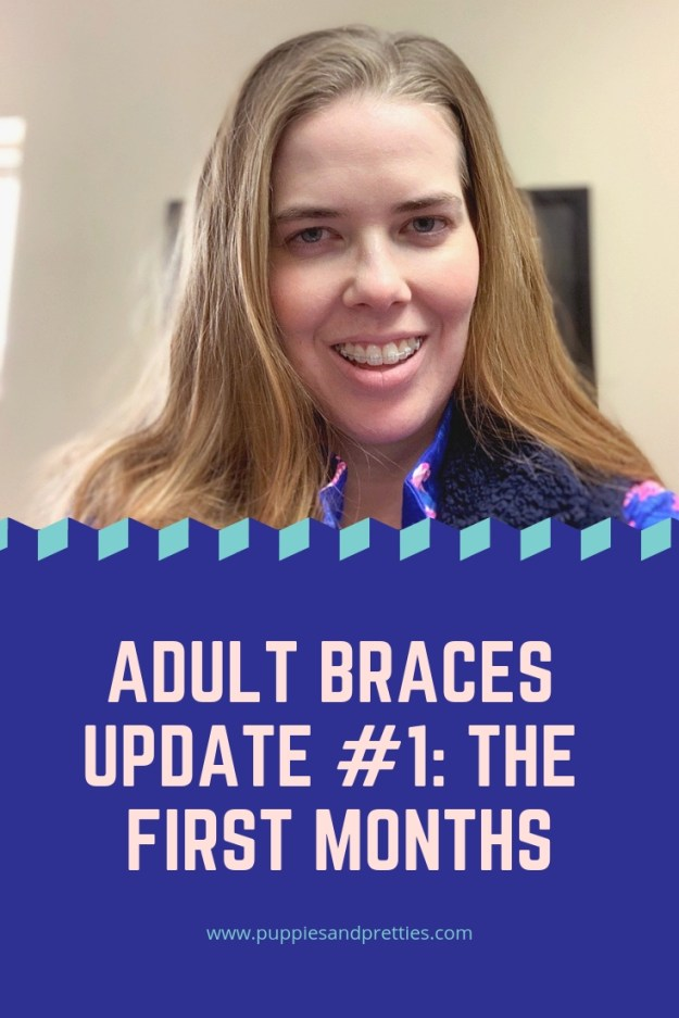 Adult braces update #1: The first months. Read about my first appointment to get ceramic braces on, living with braces and the second set of ceramic braces. | Puppies & Pretties