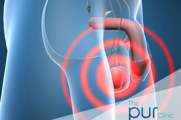 pur-clinic-testicular-pain