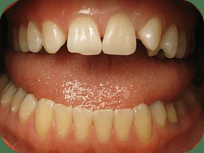 dental emergency after