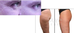 PureSculpt combined skin tightening cellulite treatment