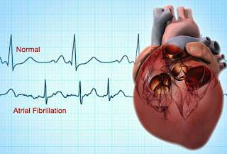 Lone AFib – Exercise Cool Down and Swallowing as Trigger?