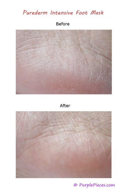 Purederm Foot Mask - Before and After Photos