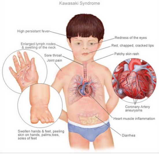 Kawasaki-Disease-Symptoms-Infographic