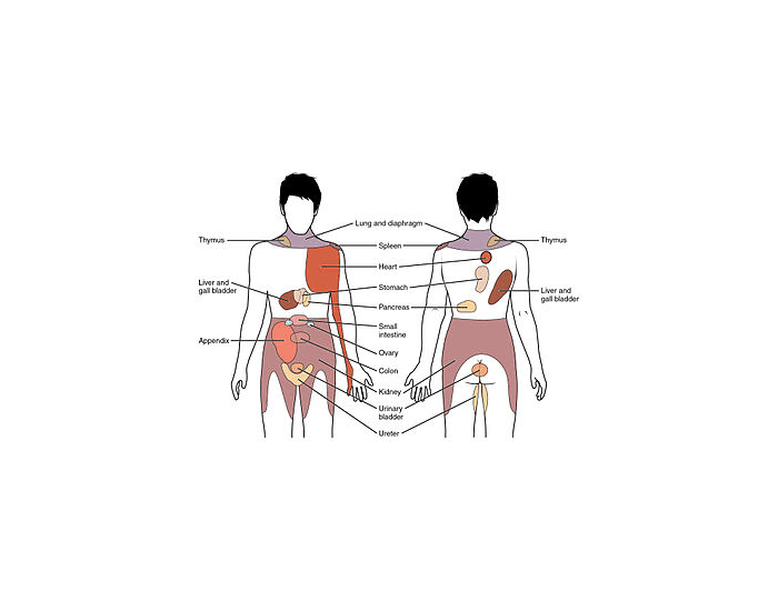 Referred pain Sites