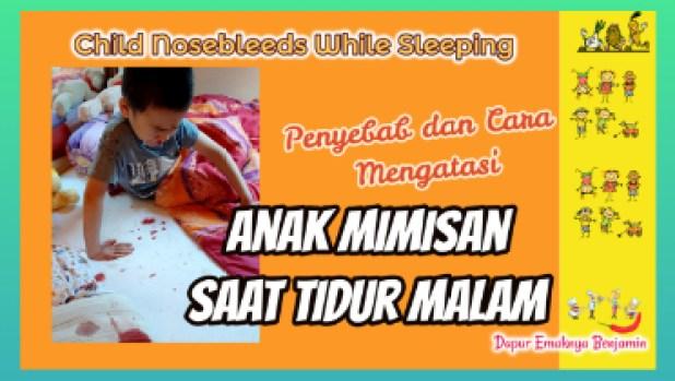 Anak Mimisan Saat Tidur Malam Penyebab dan Cara Mengatasinya