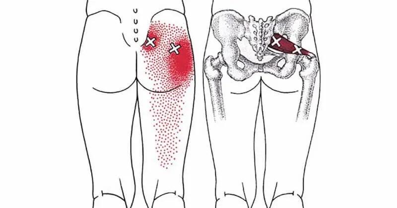piriformis-stretches-sciatica-1.jpg