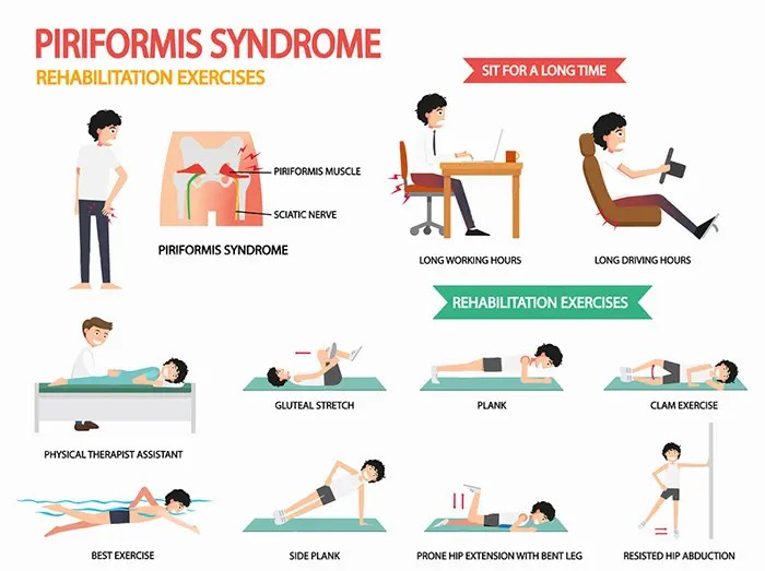 relieve illustrations of various exercises for piriformis syndrome