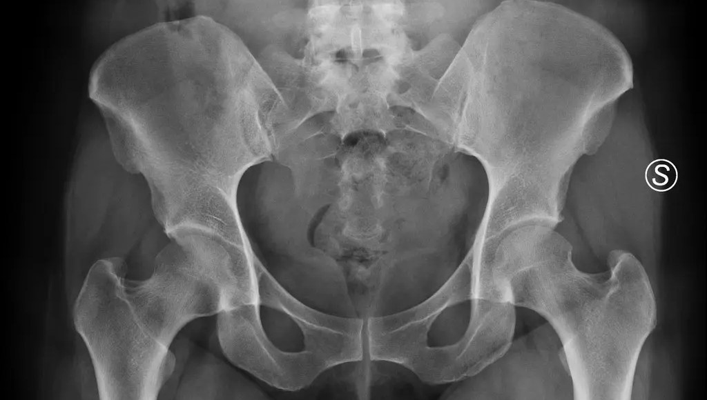 Osteitis Pubis Rehabilitation | El Paso, TX Chiropractor