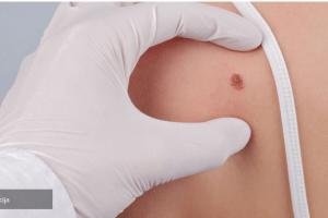 Od karcinoma kože godišnje oboli 300 građana