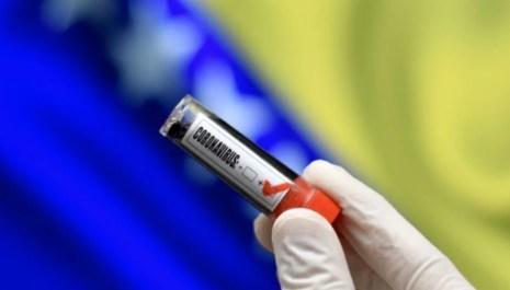 Koronavirus u BiH: 389 novozaraženih, preminulo 27 osoba