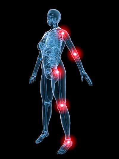 Bone & Joint Pain in MPN Patients Explained