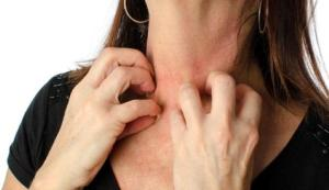 woman scratching her neck due to PV