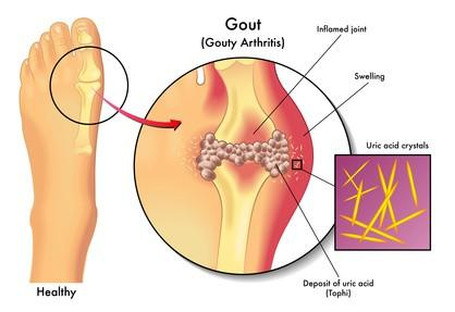 Gout in MPN Patients Explained