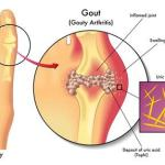 gout in mpn