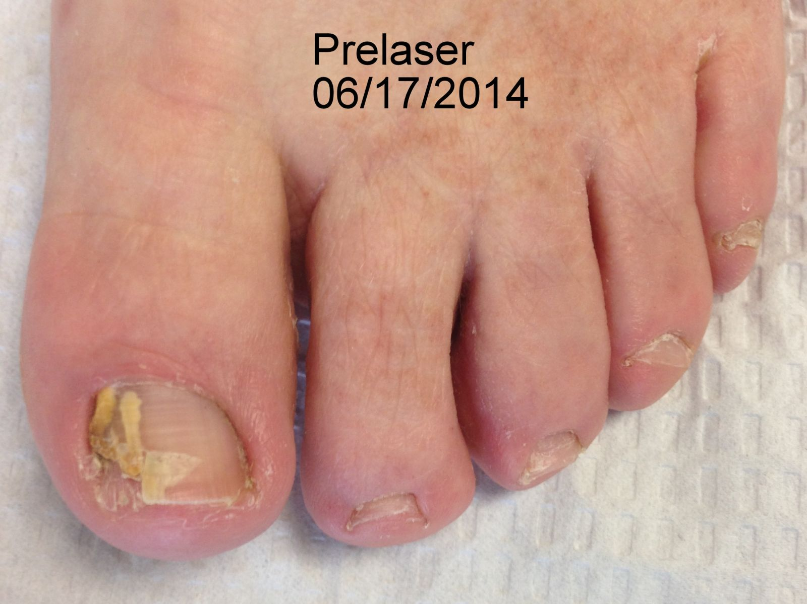 Hammers And High Heels A Relaxing Renewal Plenty Of: Hammertoes Surgery