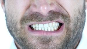 man grinds teeth