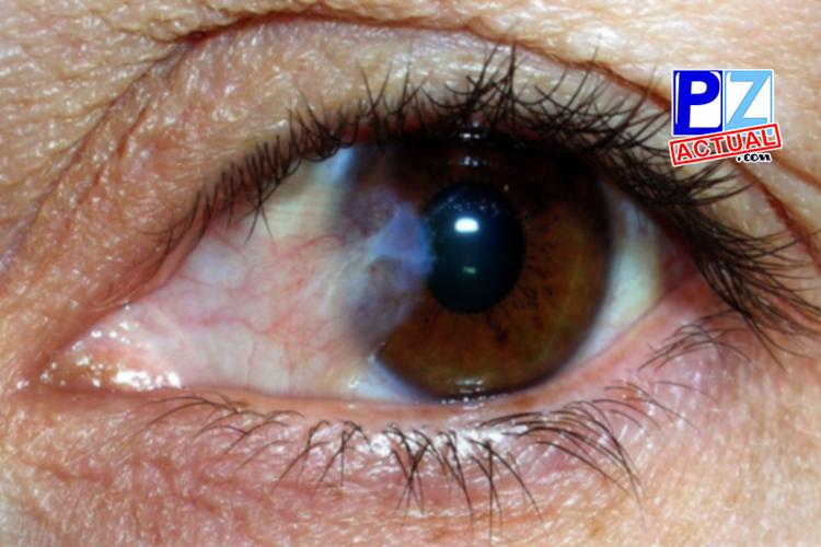 Sesenta asegurados de la CCSS recuperaron la vista en Ciudad Neily.
