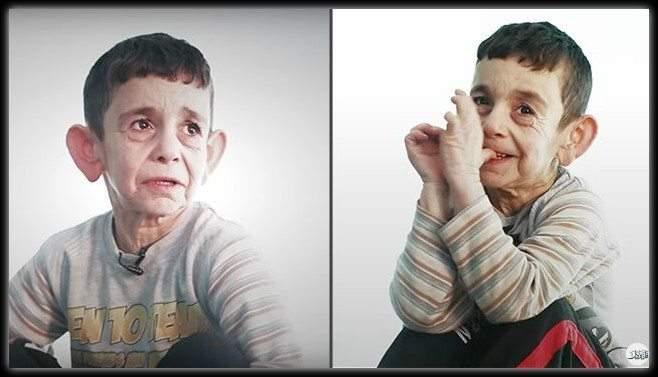 """بنجامين بوتون السوري"""".. يعاني من الشيخوخة"""