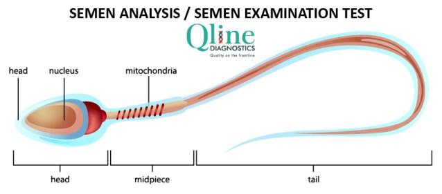Semen analysis or semen examination test