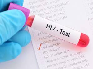 HIV AIDS testing center ahmedabad