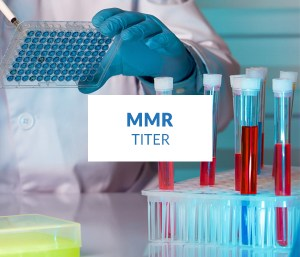 mmr vaccine immunization titre level test ahmedabad gujarat
