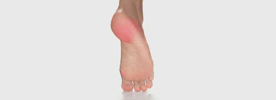 Plantar Fasciitis / Heel Spur Syndrome