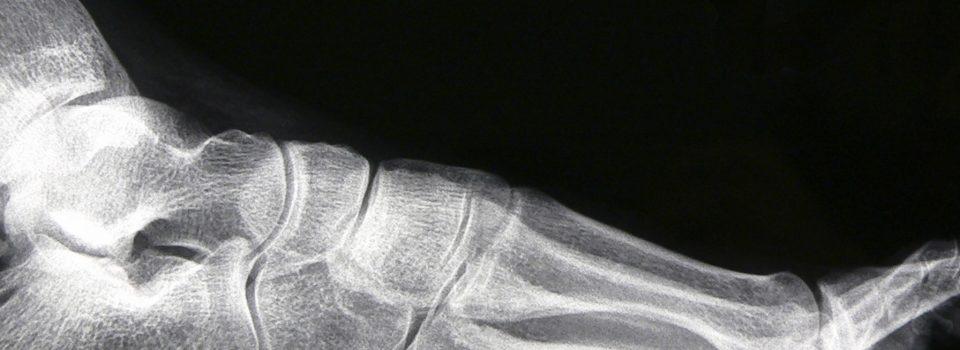 Haglund's Deformity / Retrocalcaneal Exostosis