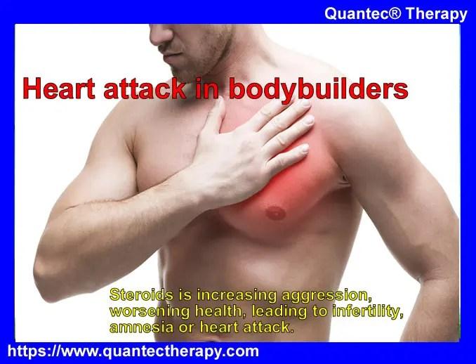 heart attack prevention treatment