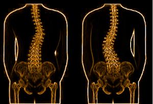 colonna vertebrale scoliosi e guarigione quantica