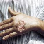 Chagas Symptom