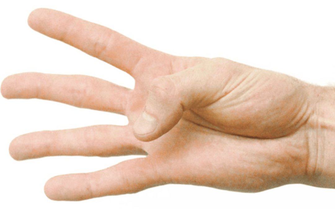 Arthritis in Your Hands – a Physiotherapist's Guide