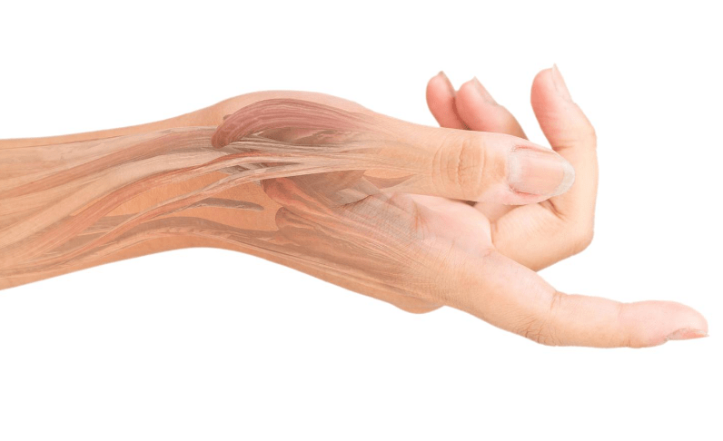 An anatomical diagram showing the tendos in a wrist