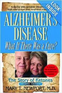 alzheimer book