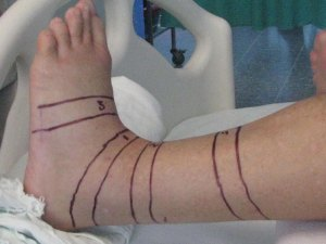 Lines around Randy's leg to measure the swelling