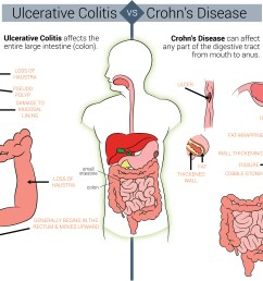 differences between crohn s and colitis qu ibd ulcerative colitis diet diagram causes ulcerative colitis [ 5455 x 4075 Pixel ]