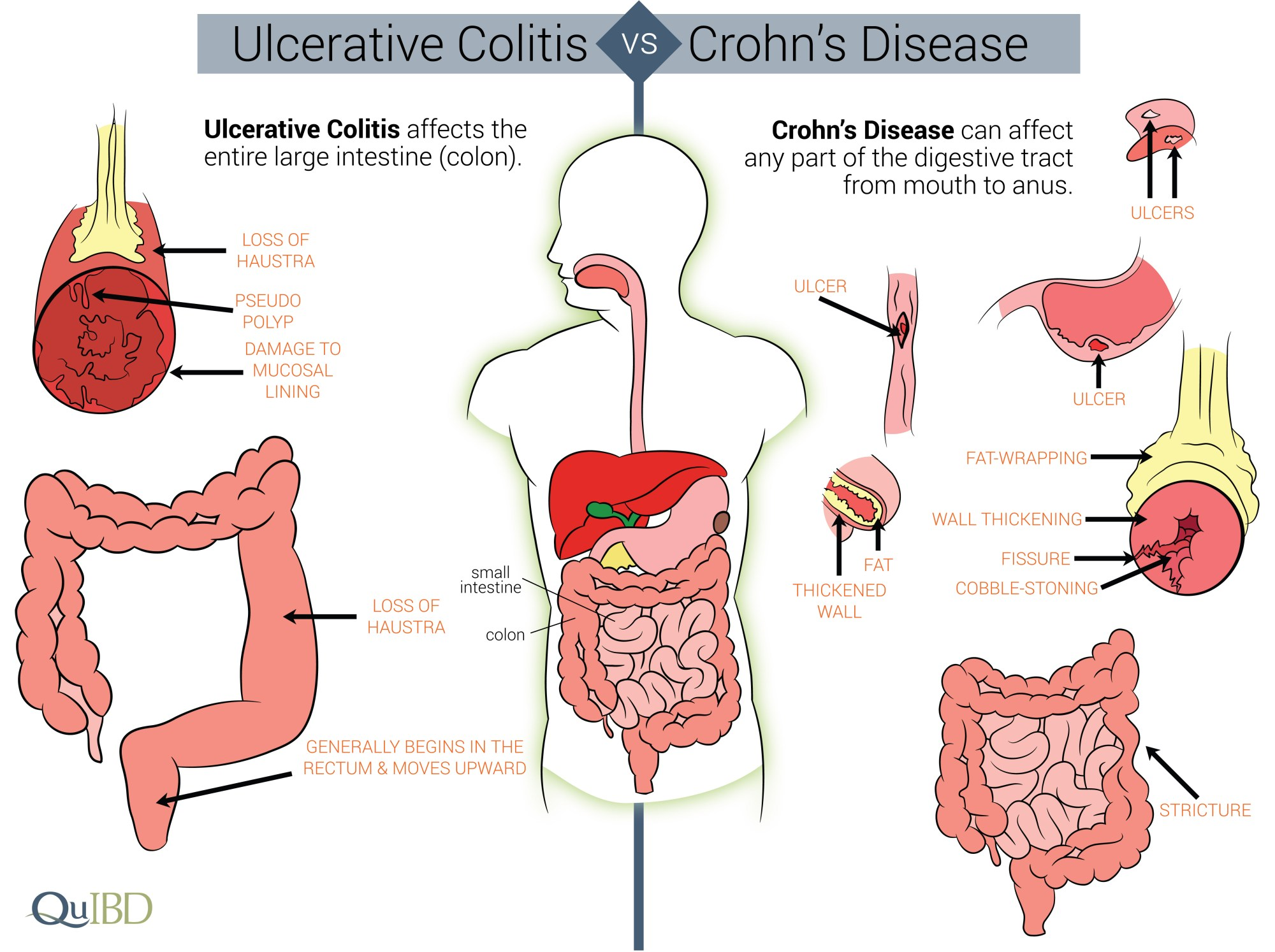 hight resolution of differences between crohn s and colitis qu ibd ulcerative colitis diet diagram causes ulcerative colitis