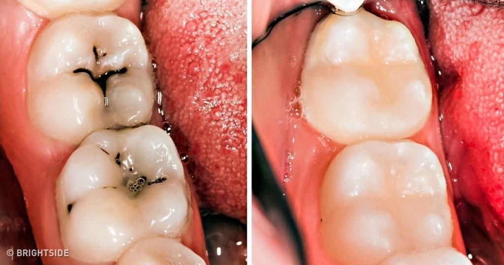 הכתבה שתעזור לכם לשמור מרחק מרופא השיניים