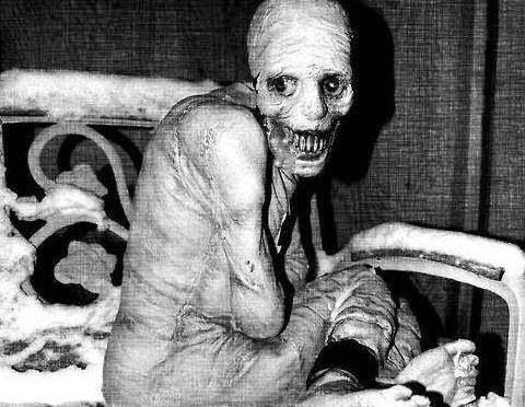 صورة يزعم انها لاحد السجناء قبل موته