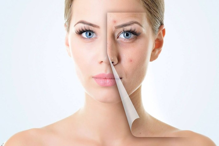 Care for Your Skin - Body Acne Treatments