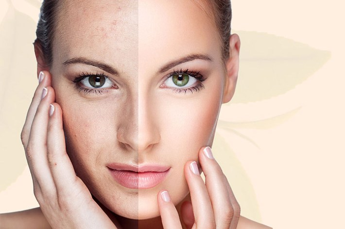 5 Beauty Mistakes That Lead to Ageing Skin