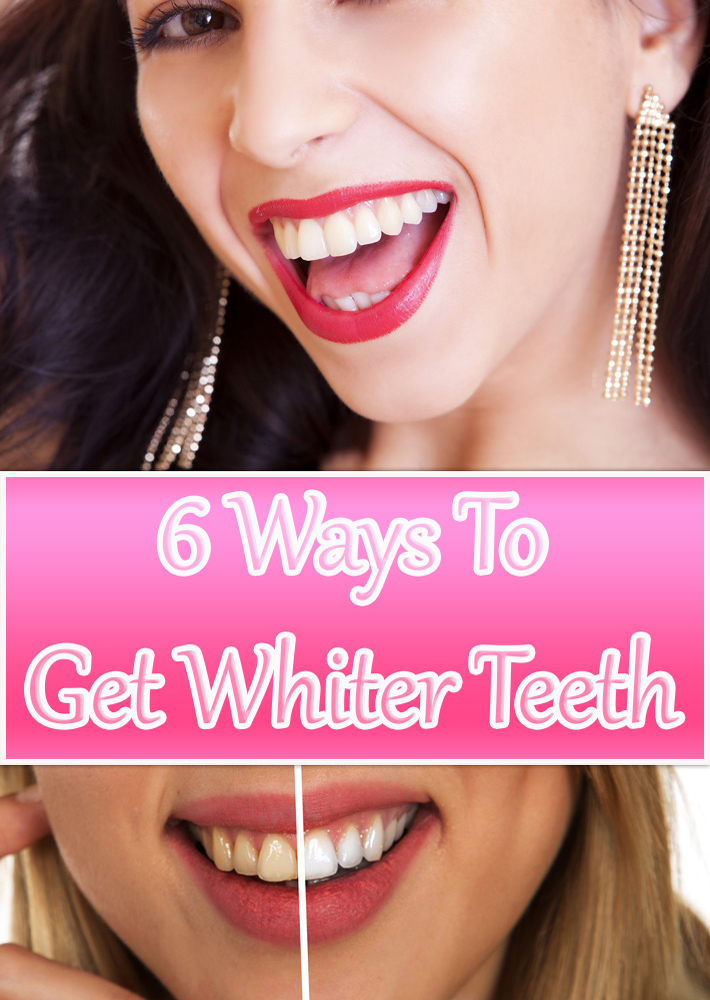 6 Ways To Get Whiter Teeth