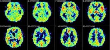 tomografia por emision