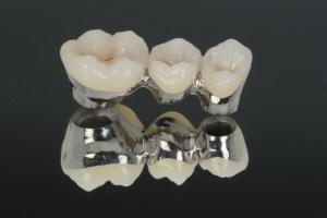 Implantes dentales con base de paladio