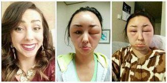 Reacción alérgica a los tintes